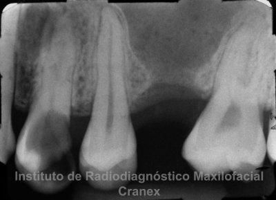Fig. 1. Radiografía periapical de proceso alveolar 2.6.