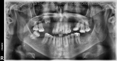 Fig. 1. Radiografía Panorámica.